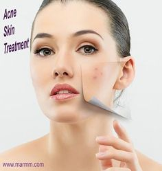 Acne scar removal treatments address each patient on the level that they are diagnosed. There are many acne scar removal methods available today. These methods can include natural remedies, certain creams and serums, and clinical methods....!!!!