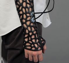 3D-printed cast uses ultrasound to speed healing #futureisprinted