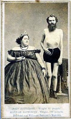 John Battersby (b. England, ca. 1832) was average weight as a child but began losing weight uncontrollably at the age of 15. He weighed 45 pounds at the age of 30, when he met Maine native Hannah Perkins, one of P.T. Barnum's fat ladies, who was just 20 years old but already weighed over 500 pounds.