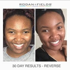 Wow...AMAZING! Check out what a difference one month on Reverse has made for this gorgeous young lady who is the little sister of fellow Consultant Irielle! Are you ready to start your journey to flawless skin now? It's never too late!  https://iarman.myrandf.com/Shop/Reverse