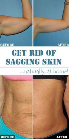 Natural Sagging Skin Home Remedy