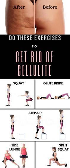 Every 9 out of 10 people have cellulite at some part of their body. More than of women have cellulite. It's not true that only overweight women have cellulite, it can occur to every body type be it slim or fat. This article contains the best exercises Cellulite Wrap, Causes Of Cellulite, Cellulite Exercises, Reduce Cellulite, Anti Cellulite, Cellulite Workout, Thigh Cellulite, Fitness Exercises, Training Exercises