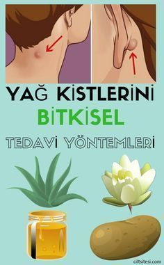 Fat Cyst Herbal Treatment Methods- Yağ Kisti Bitkisel Tedavi Yöntemleri 10 natural tips for treating fat cysts at home. Wellness Activities, Wellness Tips, Health And Wellness, Health Tips, Health Fitness, Natural Detox, Tips & Tricks, Natural Health Remedies, Exercises