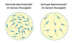 Wie wird ein Spermatest durchgeführt? 💦 Ein Spermatest (Spermogramm) muss von Fachärzten und in voll ausgestatteten Krankenhäusern durchgeführt werden. 🏥 Die Ergebnisse der Spermatests liegen am nächsten Tag vor. 👨🏻⚕️ Ihr Arzt kann im Abstand von 3 bis 8 Wochen mindestens 2 Spermatests anfordern. #sperma #spermatest #Spermienzählungstest #potenz Bee, Chart, Fertility, Facts, Pool Chairs, Honey Bees, Bees