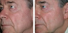 The Laser360™ is an aesthetic laser treatment combining three revolutionary technologies to rejuvenate the skin.