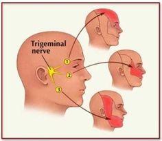 Treatment for Trigeminal Neuralgia|Solutions | NanoVibronix