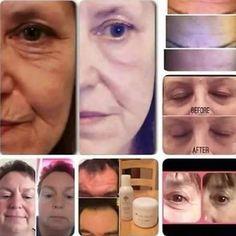 OTTHONI RÀNCTALANÍTÀS fél óra✔✔✔✔✔ Ez a 2termék a kozmetikusok nagy kedvence
