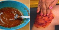 Natrite si kĺby touto zmesou a bolesť kompletne ustúpi v priebehu minút…