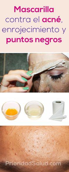Mascarilla para eliminar el  acne, enrojecimiento y puntos negros