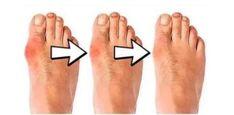 US$ 18.99 - Silicone Hammer Toe Corrector - www.lokeeda.com Hammer Toe Correction, Posture Correction, Health Benefits Of Grapefruit, Get Rid Of Bunions, Cinnamon Benefits, Bow Legged, Muscle Imbalance, Kinesiology Taping, Foot Pain