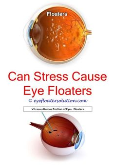 Can Stress Cause Eye Floaters And Flashes Eye Floaters