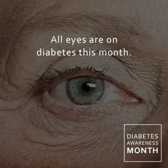 All eyes are on diabetes this month. When a patient's sugar levels fluctuate the natural lens in the eye can swell or thin.This will cause a change in vision and glasses prescription. To find out more about diabetic eye diseases or to start your treatment, call 717-387-5657 for an appointment.   READ ABOUT IT HERE https://www.linkedin.com/pulse/diabetes-eye-alison-ridenour