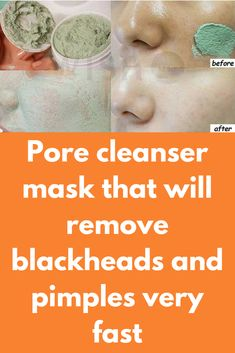 Pore cleanser mask that will remove blackheads and pimples very fast Natural Acne Remedies, Skin Care Remedies, Pimples On Chin, Natural Oils For Skin, Pore Cleanser, How To Get Rid Of Pimples, Clogged Pores, Blackhead Remover, Skin Problems