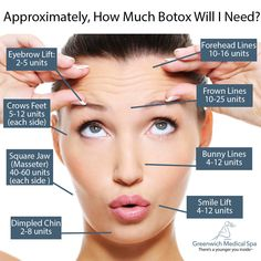The amount of Botox an individual will need is dependent on multiple factors, and will always vary from person to person. However, there is a range at which the average person needs to achieve the desired results. Facial Fillers, Botox Fillers, Dermal Fillers, Botox Brow Lift, Eyebrow Lift, Botox Injection Sites, Botox Injections, Smokers Lines, Botox Face