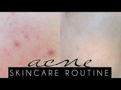 ACNE SKINCARE ROUTINE   Updated Skincare Sensitive Acne Prone Skin