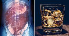 Una investigación revela que incluso el consumo moderado de alcohol puede causar daño significativo, incluyendo aumento de la rigidez hepática, intestinos con fugas y más.