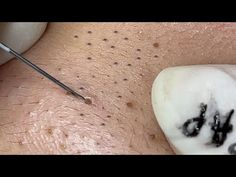 Blackheads On Face, Pimples, Whitehead Removal, Pimple Popping, Haircuts With Bangs, Beauty Spa, Nasa, Relax, How To Remove