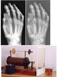 Early x-ray machine developed by Hoffmans and van Kleef, Images of the hand specimen of an 86-year-old woman obtained with vintage x-ray machine (left) and a modern x-ray system (right). The exposure time with the 1896 system was 21 minutes.