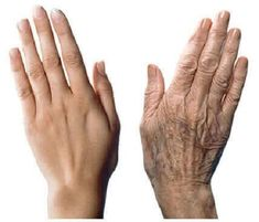 Anti-Aging Skin Care Tips For Younger Looking Hands - Beautiful Skin By Carmen Anti Aging Tips, Anti Aging Skin Care, Natural Skin Care, Natural Beauty, Creme Anti Age, Anti Aging Cream, Age Spots On Face, Age Spot Removal, Nagellack Trends