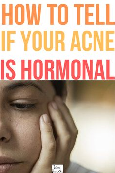 Hormonal acne is on the rise. According to the National Institutes of Health, 50% of females between the ages 20 and 29, 35% of females between the ages 30 and 39, and 26% of females between the ages 40 and 49 suffer from acne. If you're not sure whether you fall in those categories or not, this article will tell you the signs of hormonal acne. #hormonalacne Acne Blemishes, Pimples, Best Acne Treatment, Acne Treatments, Hormonal Acne Remedies, Skin Dermatologist, Bad Acne, Acne Mask