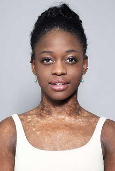 Imágenes de Michaela de Prince, reconocida bailarina de 20 años, solista del Ballet Nacional de holandesa, originaria de Sierra Leona, África Occidental.- El Muni.
