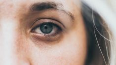Deal with Dark Circles . It is a fact that as we age we become more susceptible to dark circles. Melanin builds up under eyes, making skin appear saggy. Bumps Under Eyes, Under Eye Fillers, Tear Trough, Under Eye Makeup, Dark Circles Under Eyes, Skin Regimen, Under Eye Bags, Tired Eyes, Puffy Eyes