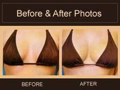 Cell breast augmentation