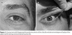 Multiple Evanescent White Dot Syndrome - EyeWiki
