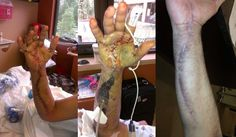 The risks and side effects of hand surgery
