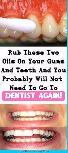 Rub These Two Oils On Your Gums And Teeth And You Probably Will Not Need To Go To Dentist Again #teeth #health #diy #remedy #remedies #gums #beauty