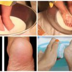 Don't Waste Your Money on Pedicure Anymore: Just Two Ingredients from Your Kitchen Can Make Your Feet Look Amazing!
