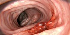 Oral Cancer, Colon Cancer, Cancer Fighting Foods, Types Of Cancers, Liver Disease, What You Can Do, Grapefruit, Health, Salud