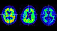Drug to diagnose Alzheimers