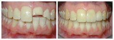 Hàn răng có nhiều kiểu, hoặc là hàn răng sâu để khắc phục bệnh lý, hoặc là hàn răng sứt mẻ để phục hồi hình thể thẩm mỹ và sức nhai cắn cho răng, cũng có thể hàn răng ngắn, răng thưa,… Hàn răng có đắt không phụ thuộc vào từng kiểu hàn trên đây và số lượng răng cần hàn cụ thể.