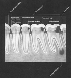 bitewing X-ray leaks secrets of teeth a lot