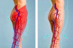 Comment relancer la circulation sanguine dans vos jambes à l'aide du citron - Astuces de grand mère