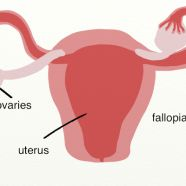"""What causes PCOS? Many of the PCOS """"experts"""" in the world do not understand fully the connection between the endocrine system and the reproductive system. Because of this, they miss a very important link between metabolic syndrome and PCOS. Cystic Ovarian Syndrome, Polycystic Ovary Syndrome, Reproductive System, Endocrine System, What Causes Pcos, Getting Off Birth Control, Causes Of Infertility, Metabolic Syndrome, Medical Field"""
