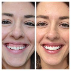 Cosmetic dentistry -Gingivectomy and composite direct veneers