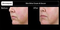 Check out our blog for a great solution for dark spots, under eye circles and hyper-pigmentation. If you have further concerns about your skin please call (714)840-4004 to speak to a skin care professional.  http://katieraberblog.wordpress.com/2014/10/04/problems-with-dark-spots-under-eye-circles-and-hyper-pigmentation-read-this/