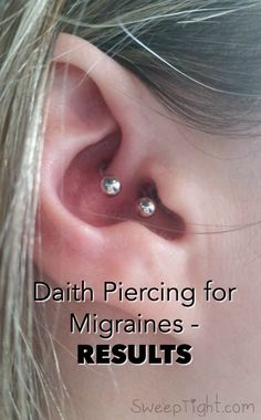 After over 20 years of suffering with severe migraine symptoms, I decided to try. - After over 20 years of suffering with severe migraine symptoms, I decided to try this ear piercing - Tension Headache, Headache Relief, Migraine Headache, Severe Headache, Severe Migraine Symptoms, Ear Piercing For Migraines, Piercing For Migraine Relief, Daith Piercing Healing, Yoga Poses