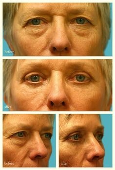 Eyelid Surgery New York City - http://www.naturalfacedr.com