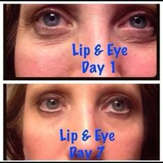 Results from using Lifting Lip & Eye Cream from It Works! for 7 days. Just $29 as a Loyal Customer. For more info or to order visit our website: http:// itworksforme.itworks.com