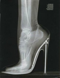 Heels x-ray...pre-med obsessions