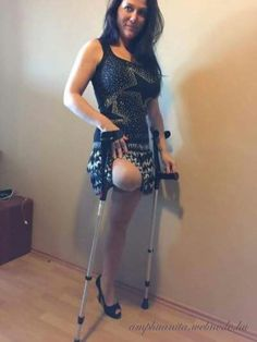 Drink Driving May Have Cost Her A Leg Job Criminal Record And A Lot Of Pain But Sheis Loving The Amputee Life