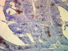 Immunohistochemical detection of Hscp70/Hsc70 in human colon tissue using a 1:100,1000 dilution of SMC-106B.  Stained (brown) in inflammatory cells.