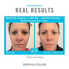 """After the first month of using the REDEFINE Regimen, I added the REDEFINE AMP MD™ and REDEFINE MACRO Exfoliator™ and the change in my skin was amazing. Dark circles disappeared, lines smoothed—it was all happening! Many people noticed the changes and improvements to my skin. I am ecstatic!"""" – R+F Consultant Karen   Shed the dull, dry winter skin and spring into fresh, glowing skin with Rodan + Fields!  Shop now: https://kcaffray.myrandf.com"""
