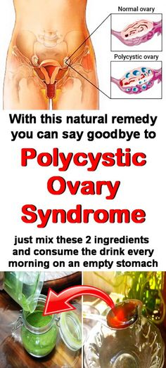 Natural remedy for polycystic ovary syndrome. #pcos #cists #fibroids #homeremedy