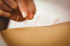 Acupuncture outperforms drugs for diarrhea relieve in IBS patients.