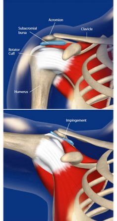 Overhead activities are risk factors to shoulder impingement syndrome. Bring frequently used items at or slightly shoulder level Shoulder Impingement Syndrome, The Human Body, Shoulder Anatomy, Rotator Cuff Tear, Shoulder Injuries, Muscle Anatomy, Anatomy And Physiology, Neck Pain, Massage Therapy