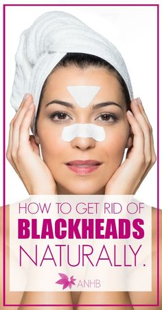 Learn how to get rid of blackheads naturally. Definitely pass this on!